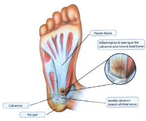 Plantar Fasciitis (wait, plantar what??)